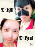 CLABIANE T-KILL T-HEAL MASK IS 👍🏻